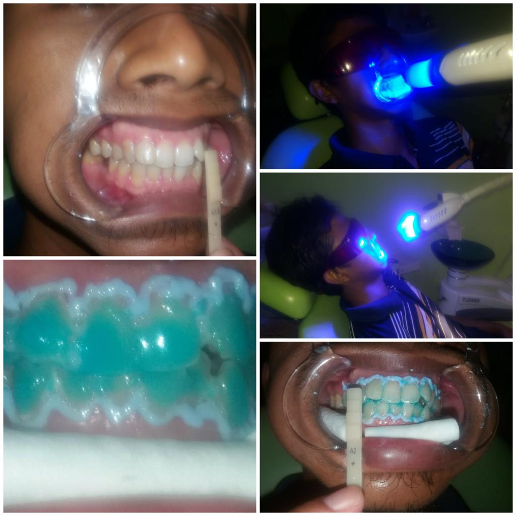 Proses memutihkan gigi (Bleaching)