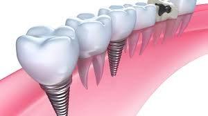 gigi palsu implant