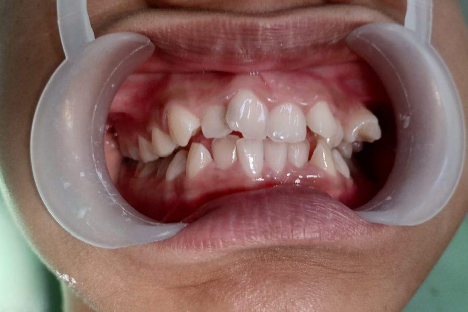 gigi tidak rapi